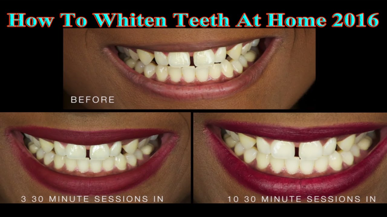 how to make your teeth whiter at home