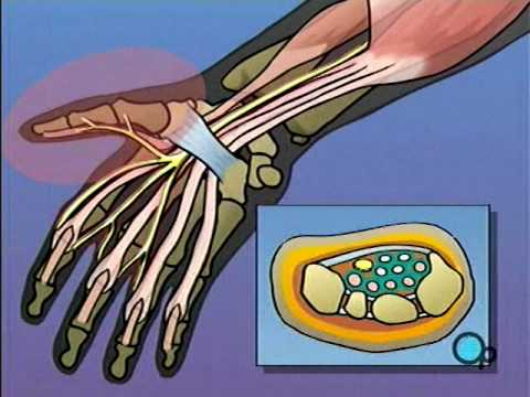 Carpal Tunnel Syndrome Repair Surgery PreOp® Patient Education Feature