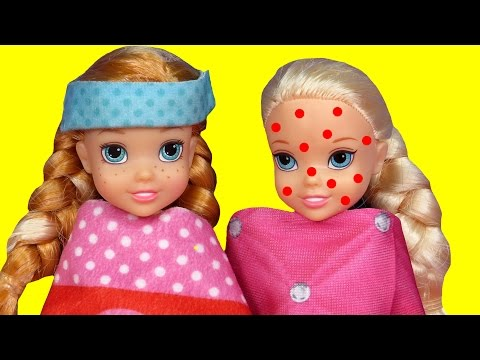 Thumbnail: Toddler is SICK ! Elsa & Anna - CHICKENPOX - The other PRETENDS ? Who's really sick ? Doctor Barbie