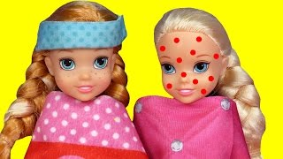 Toddler is SICK ! Elsa & Anna - CHICKENPOX - The other PRETENDS ? Who's really sick ? Doctor Barbie thumbnail