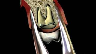 Extraction Upper Root Tips - GMX 69 Forcep