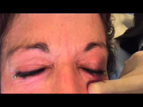 Permanent Makeup And Cosmetic Tattoo Removal | The UnTattoo Parlor