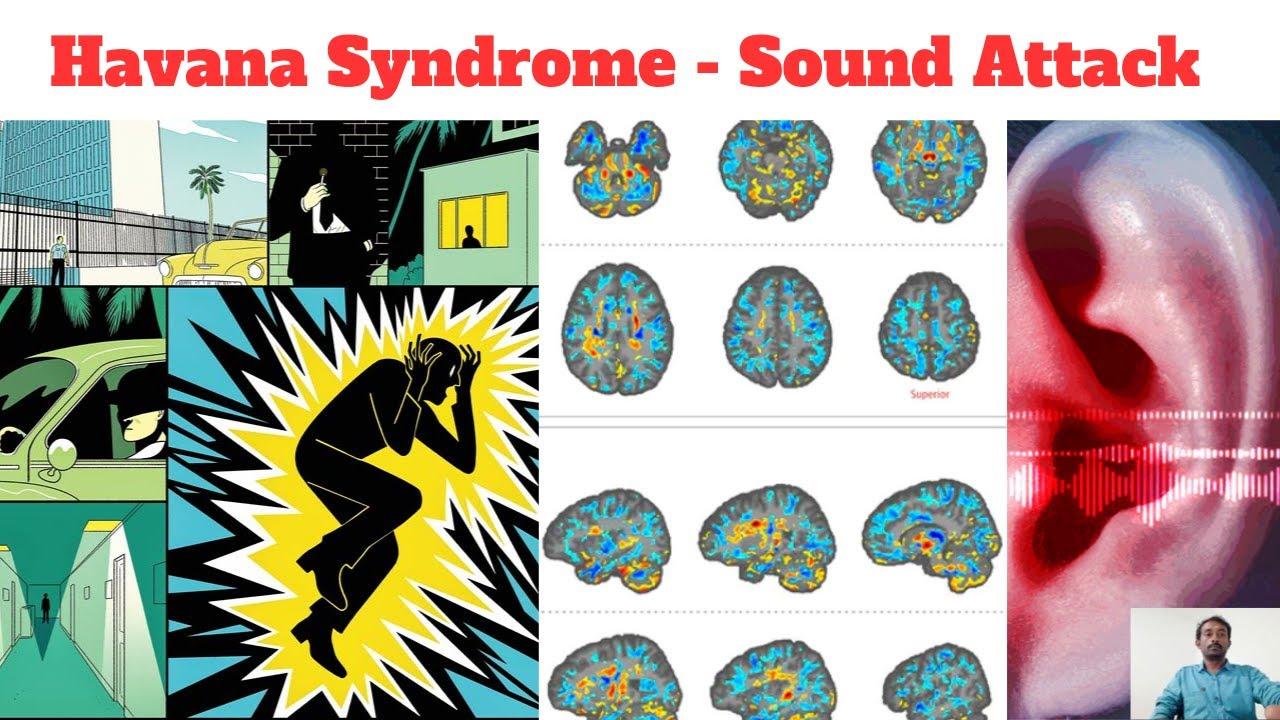 Havana syndrome | Sound attack | Tamil - YouTube