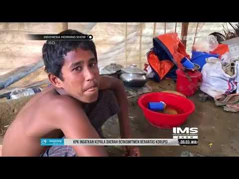 Anak Anak Pengungsi Rohingya Di Cox's Bazar Bangladesh Alami Gizi Buruk