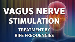 hqdefault - Vagus Nerve Stimulation Depression Other Neuropsychiatric Disorders