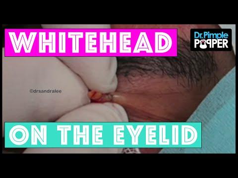 hqdefault - Tiny Pimple On Upper Eyelid