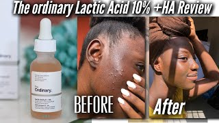 THE ORDINARY LACTIC ACID 10% + HA || In-depth Review ♾