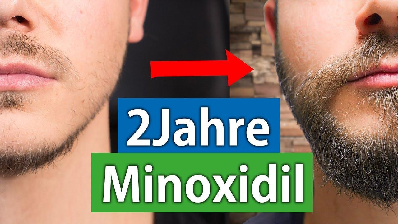 Nachher minoxidil bart vorher Haarausfall