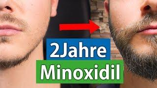 2 Jahre Minoxidil für den Bart   Das Minoxidil Experiment Woche104