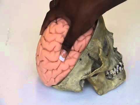 Brain Moves Inside Skull As It is Like Jello - YouTube