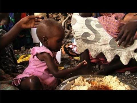 Look inside a Somalia feeding center