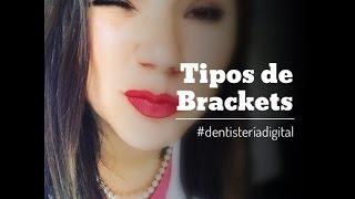 TIPOS DE BRACKETS