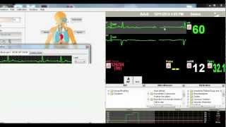 Easy EKG Rhythm Quiz