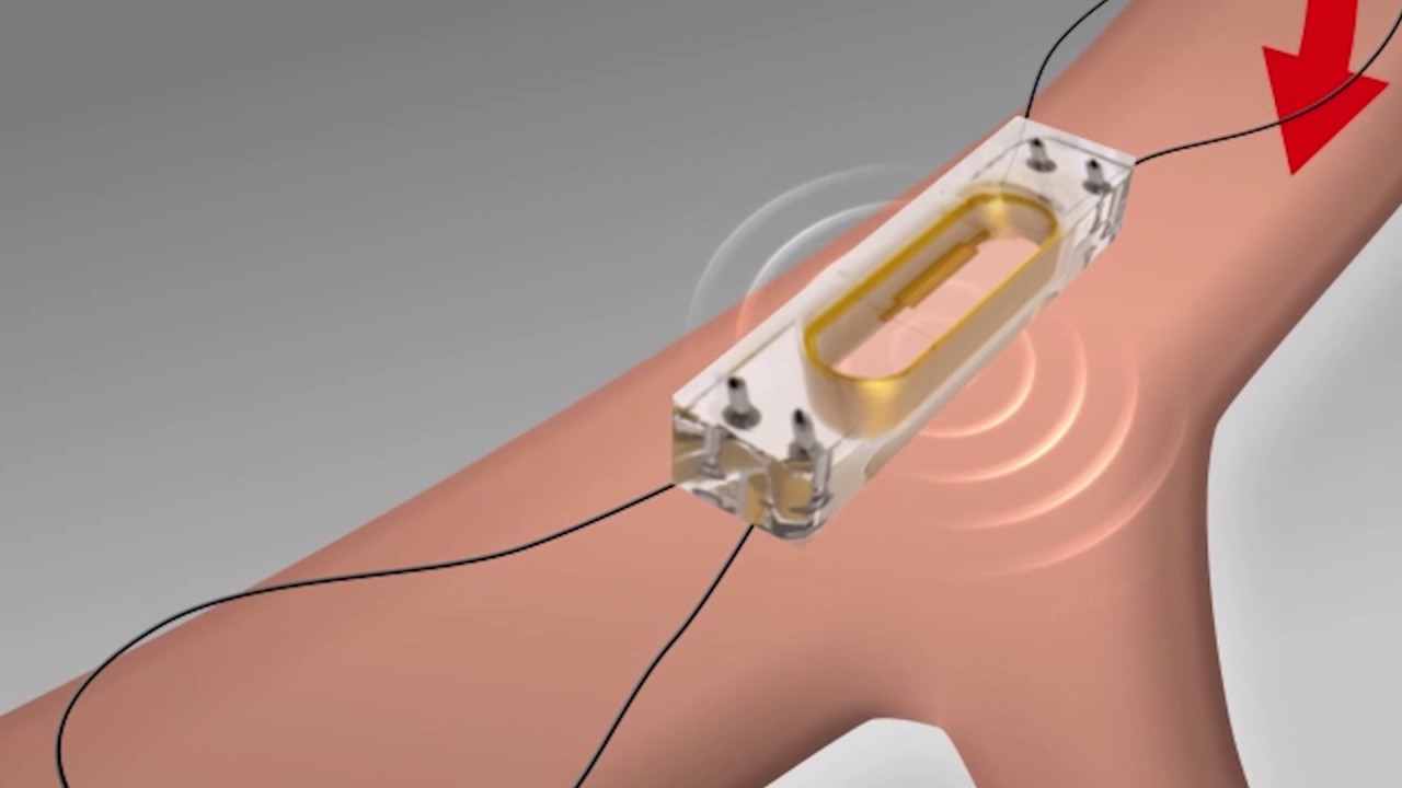 monitoring heart failure with cardiomems