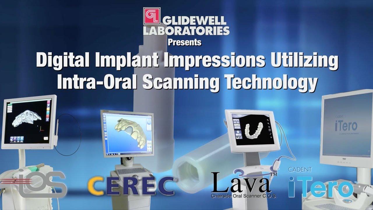Digital Impressions Utilizing Intra Oral Scanning Technology