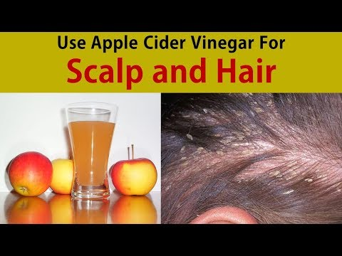 use-apple-cider-vinegar-for-scalp-and-hair---how-to-use-acv-for-hair-treatment