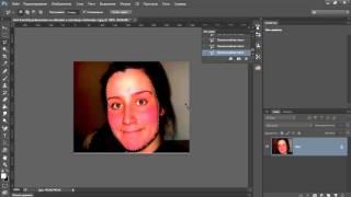 Как убрать красноту с лица в фотошопе