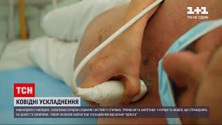 Коронавірус в Україні лікарі назвали ускладнення до яких найчастіше призводить штам Дельта