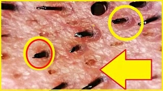 dr pimple popper how to remove blackhead nose removal blackheads on face easy with reaction 2017