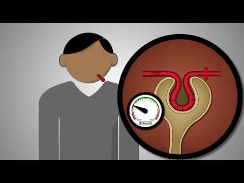 Keeping Kidneys Safe - Know How Medicines Affect The Kidneys