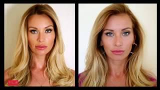 Новый нос - Ошибки хирургов: переделка