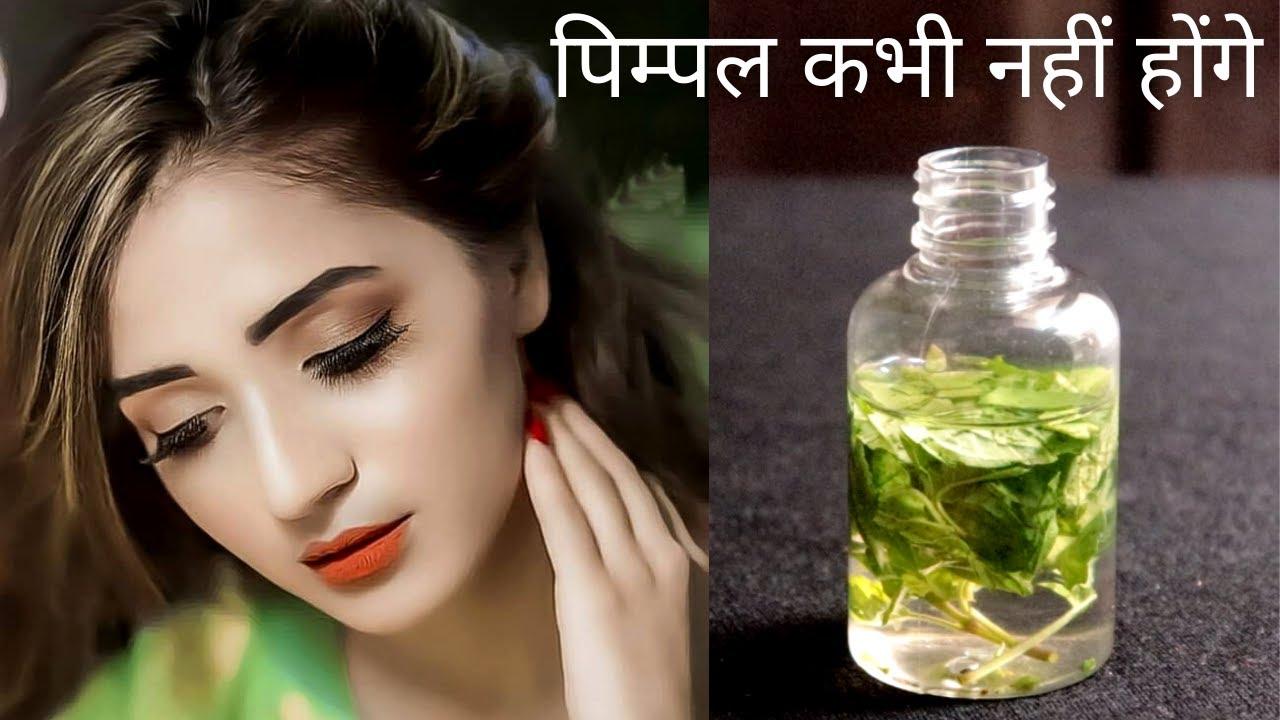 Remove Pimples/Acne/Marks Fast, Get Clear Skin| गर्मियों में लड़कियां इसे लगाएं,छोटे दाने/पसीना ख़त्म