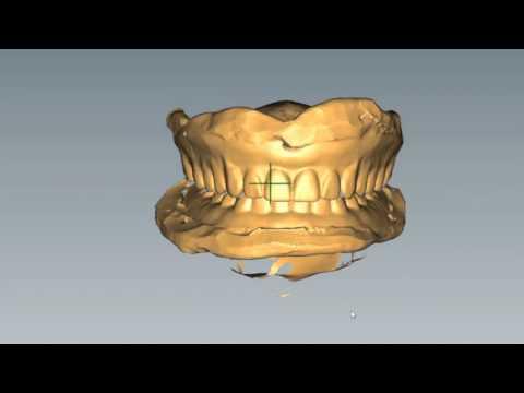 Baltic Denture System new teaser