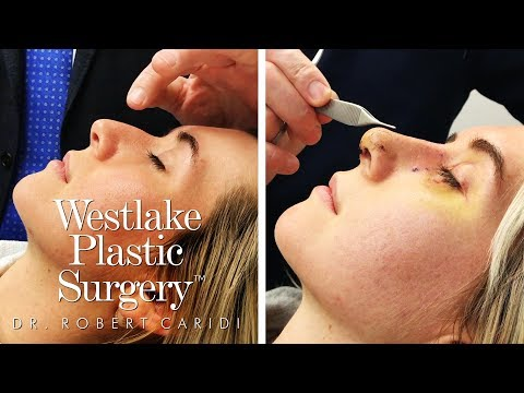 Rhinoplasty Surgical Footage - Go Into The Operating Room For A Nose Job Procedure