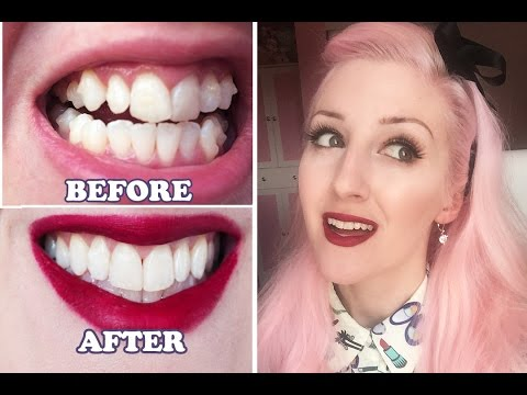 Invisalign Before Amp After My Experience Youtube