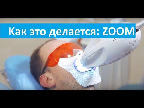 Как это делается? Zoom отбеливание. Процедура Zoom отбеливания в клинике Dr Stepman.