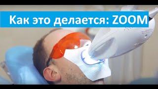 видео Способы профессионального отбеливания зубов в клиниках