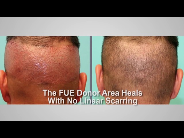 Advantages of Follicular Unit Extraction Hair Transplant Surgery FUE   by Dr  Michael Vories