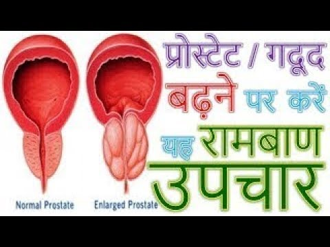 prostate ka ayurvedic treatment in hindi