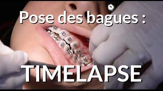 Pose d'un appareil dentaire : Timelapse - Appareil-dentaire.info