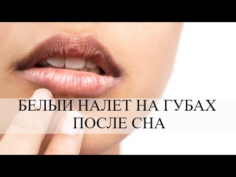 Белый налет на губах после сна: причины возникновения