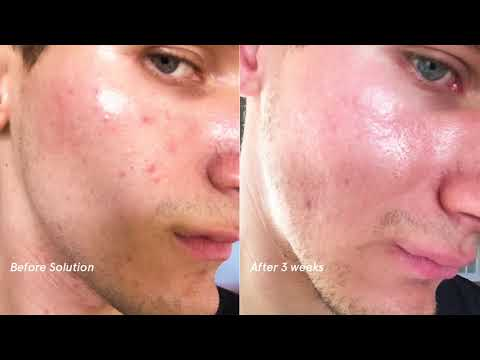 Glossier Solution: Michael, Before and After