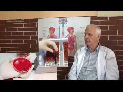Причины и симптомы кандидоза (молочницы) у женщин