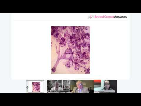 Dr. Laszlo Tabar Explains the Advantages of 3D Breast Histology