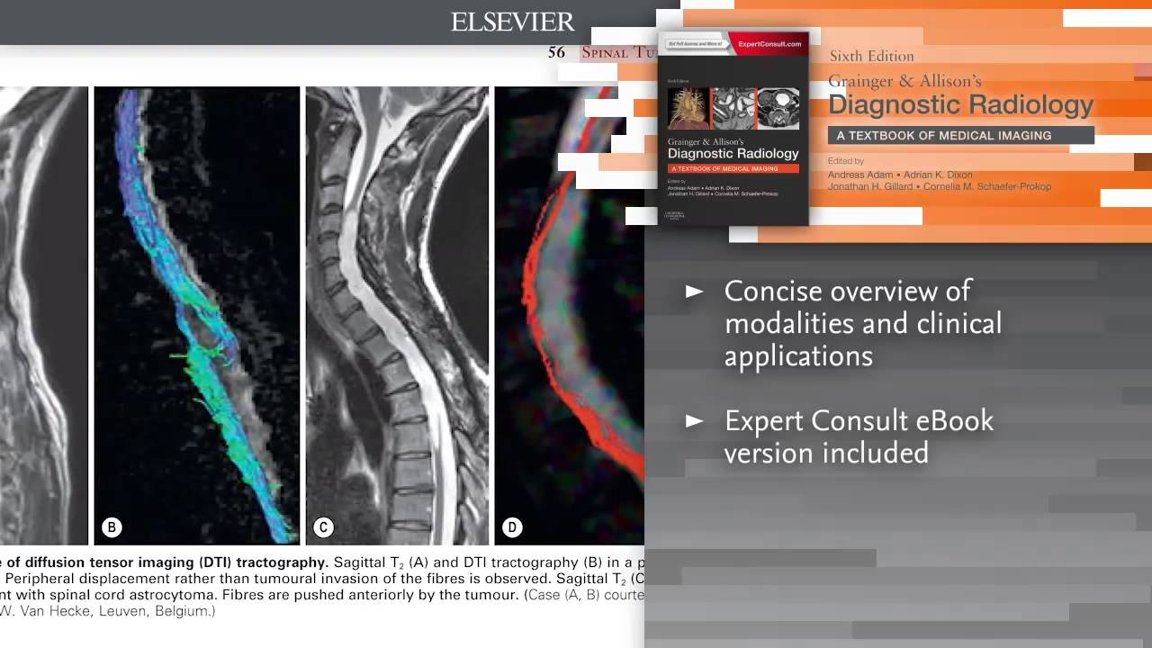 Grainger allisons diagnostic radiology 6th edition youtube grainger allisons diagnostic radiology 6th edition fandeluxe Gallery