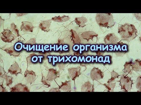 ОЧИЩЕНИЕ организма от ТРИХОМОНАД по методу Трескунова