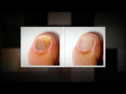 Claripro Review Claripro Nail Fungus Treatment Mp4 Youtube