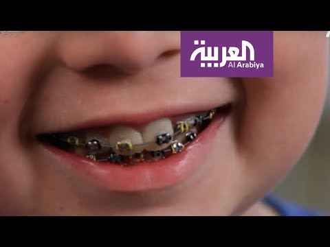 صباح العربية | ما هو تقويم الأسنان الوقائي؟  - نشر قبل 2 ساعة