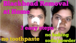 how to remove blackhead on nose at home 3 steps natural extraction on face mask 100 result hindi