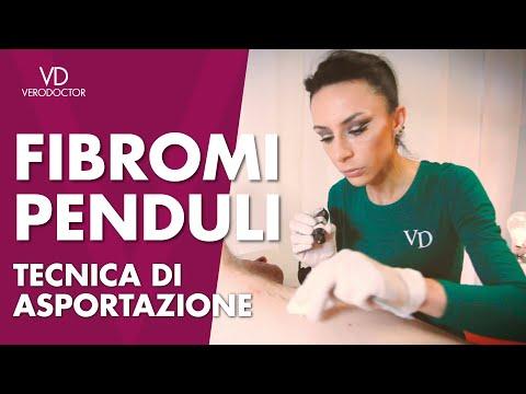 FIBROMI PENDULI - tecnica di asportazione - VERODOCTOR