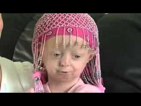Hayley Okines dies of Progeria