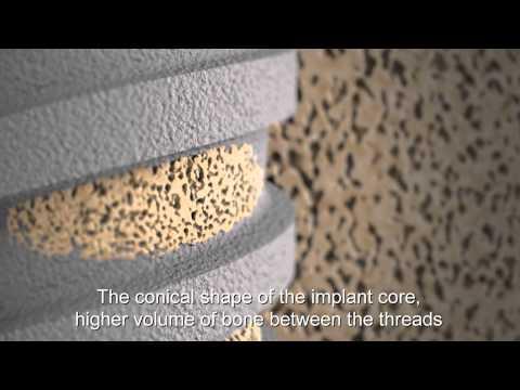 Adin Dental Implant Systems - Technology