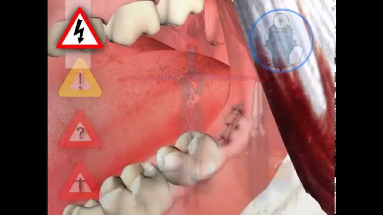 LIVE OPERATION how the wisdom tooth is removed - YouTube