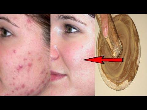 च हर स प म पल स द ग धब ब व इसक न श न हट न क अच क उप य How To Remove Pimples Black Spots