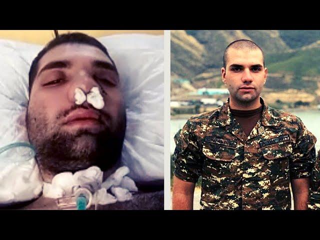 Աչքերս փակել, սպասում էի՝ երբ եմ մահանալու. Վիրավոր Լևոն Կոստանյանը/ Մեր Հերոս Տղերքը! @Argamblog