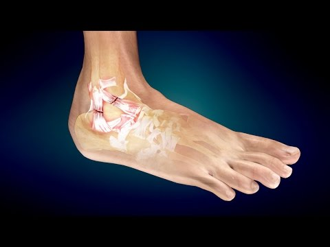 Treatment for Ankle Sprain or Twisted Ankle